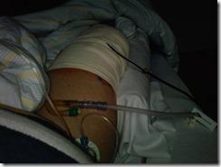 Knie am 21.06.2012