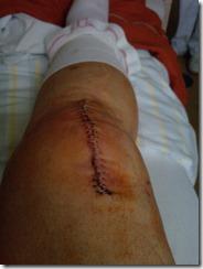 Knie am 25.06.2012